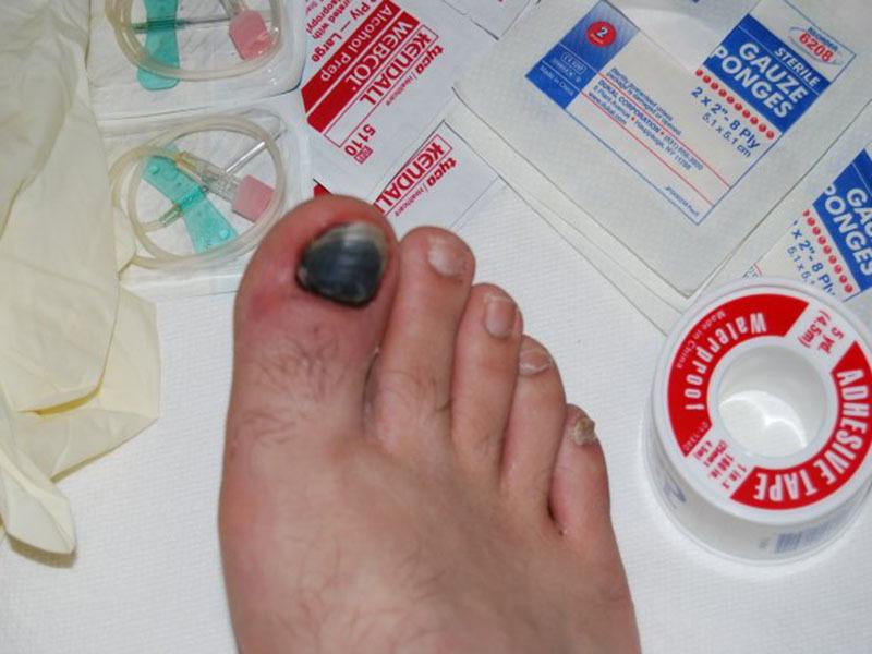 Под ногтем скапливается запекшаяся кровь, что и приводит к окрасу ногтя в черный цвет