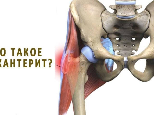 Воспаление тазобедренного сустава симптомы лечение народными средствами пункция лучевого сустава