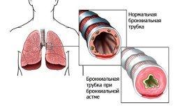 Профилактика бронхиальной астмы у взрослых