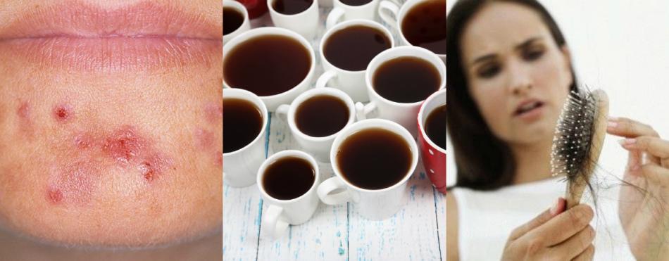 У человека, злоупотребляющего кофе, могут появиться прыщи и начать выпадать волосы.