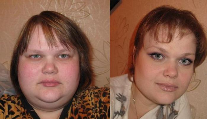причины похудение лица