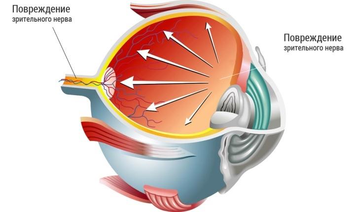 Лечение глаукомы на ранней стадии