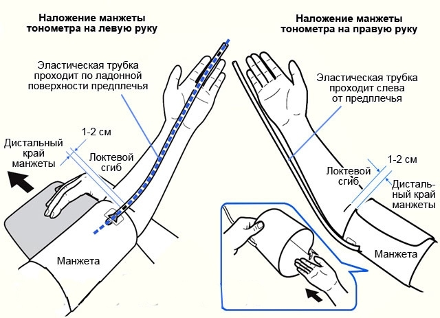 На какой руке?