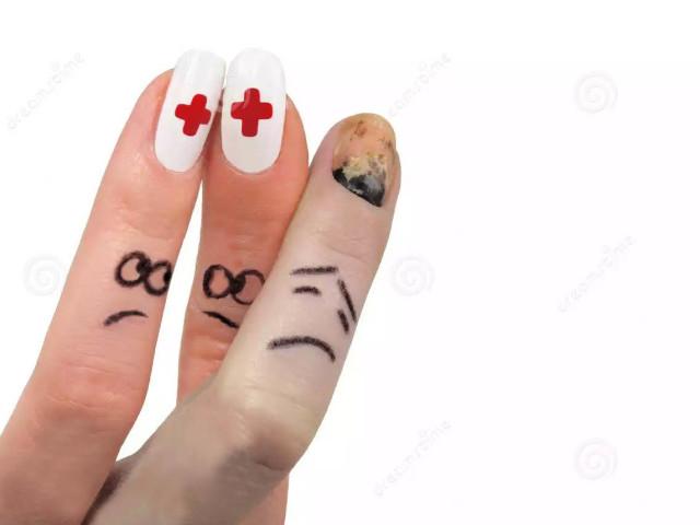 Как исправить форму ногтей после травмы