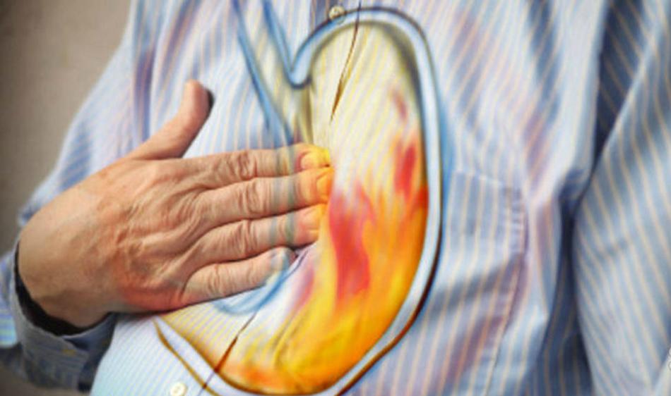 Симптомы кислотности желудка