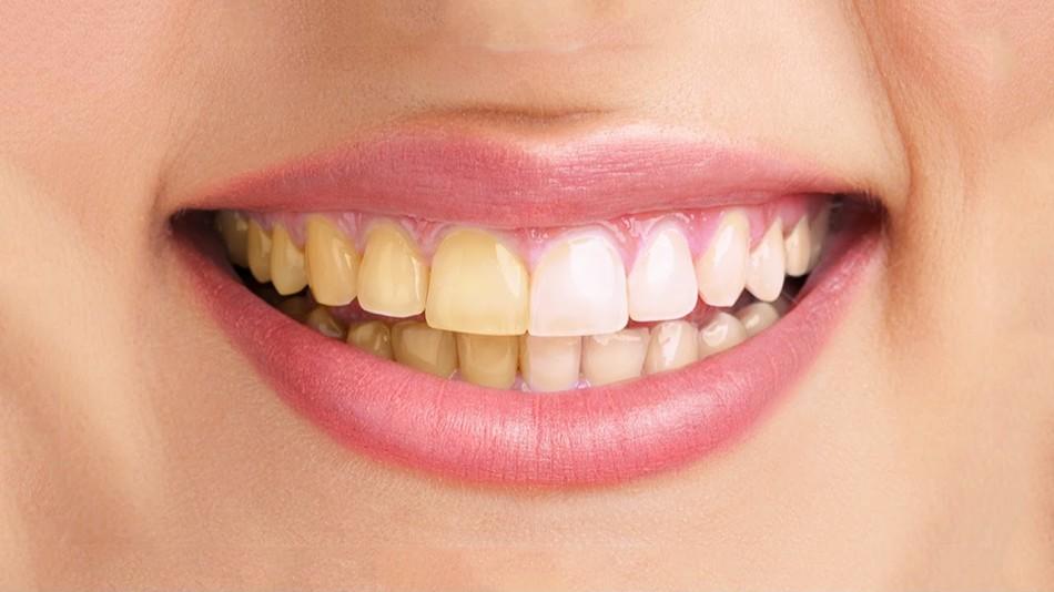 Так выглядят зубы после установки винир