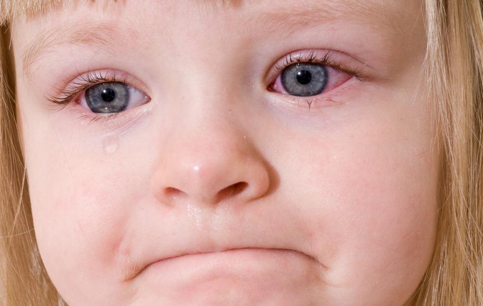 Выясните причину кровоизлияния у ребенка