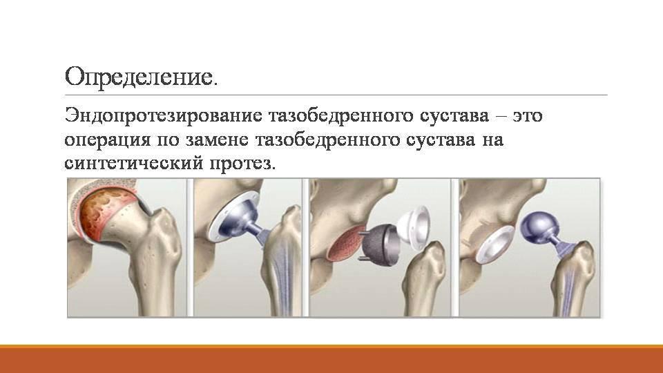 Схема протеза