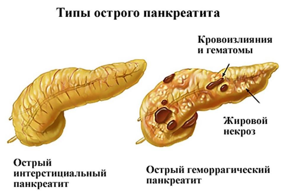 Панкреатит - самое распространенное заболевание поджелудочной железы