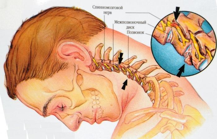 Остеохондроз и другие дегенеративные изменения в позвоночнике могут вызвать боль в шее сзади.