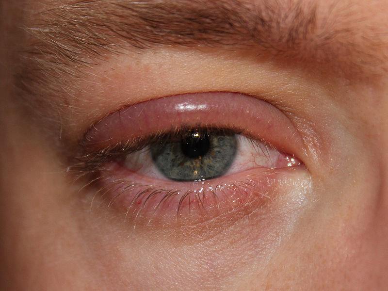 Покраснение глаз при блефарите