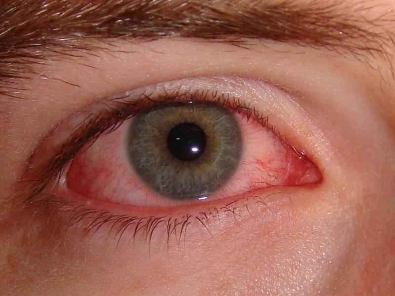 Установить точную причину красноты глаз может только врач