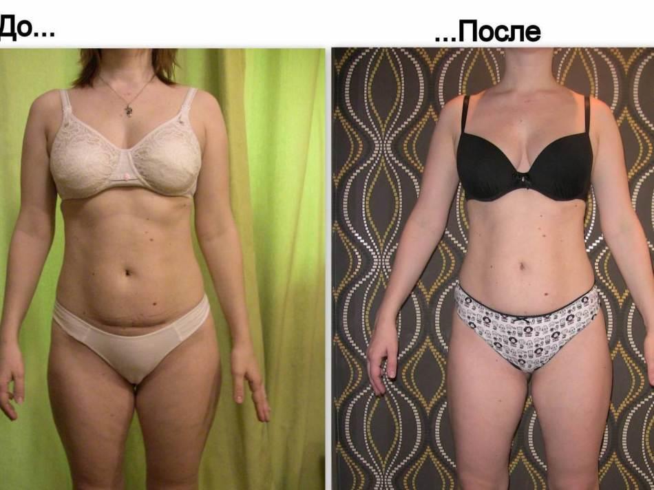 Антицеллюлитная диета до и после