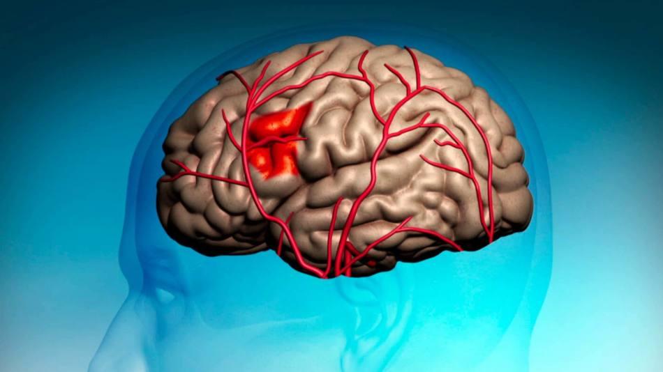 Микроинсульт: поражения участков мозга