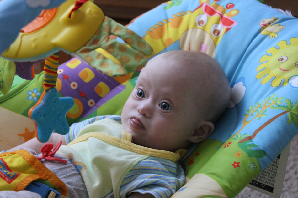 Новорожденный даун