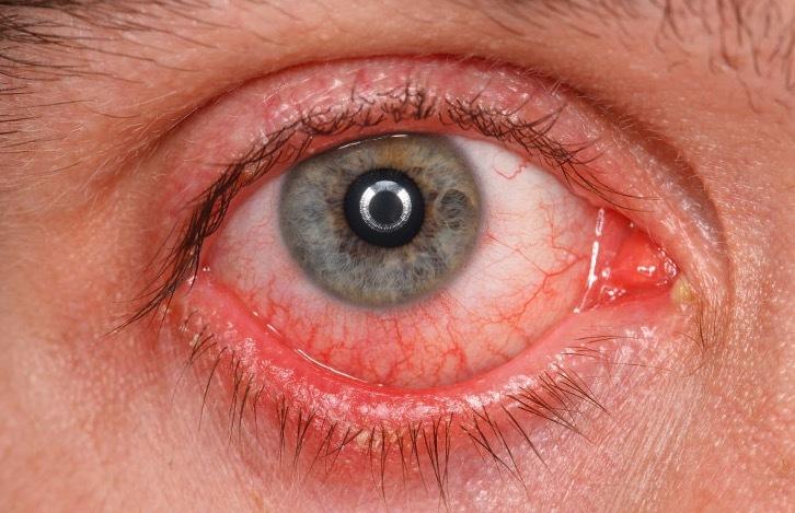 Что-вызывает-покраснение-глаз