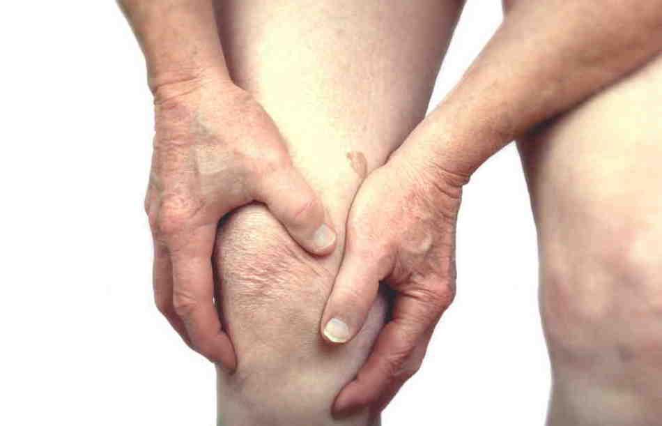 Для борьбы с артритом используют компрессы