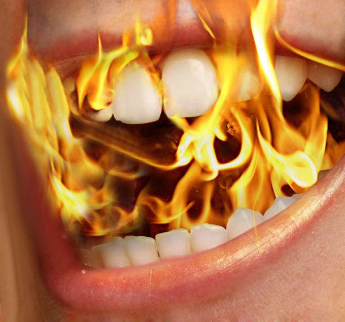 Жжение во рту врачи называют глоссодинией.