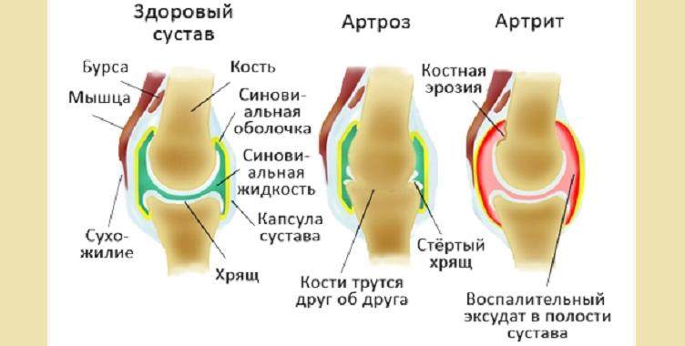 Артрозо артрит суставов верхних и нижних конечностей ложный сустав лидаза