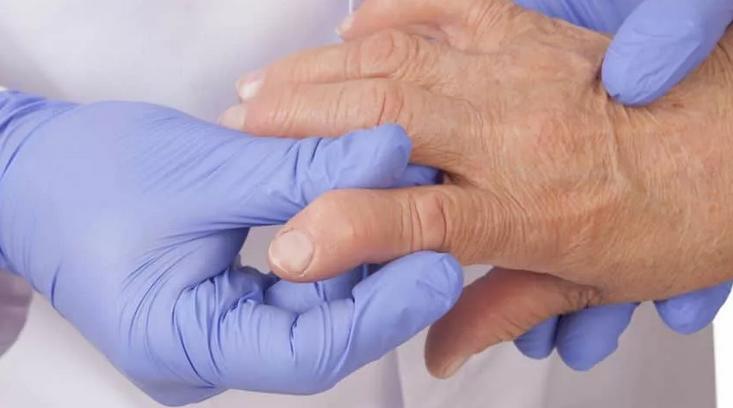 Ревматоидный артрит: аутоиммунное заболевание, причина повышения температуры