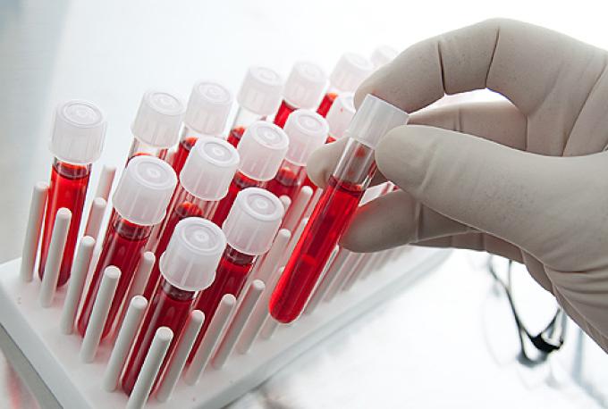 Образцы крови для проведения анализа глюкозотолерантного теста при беременности