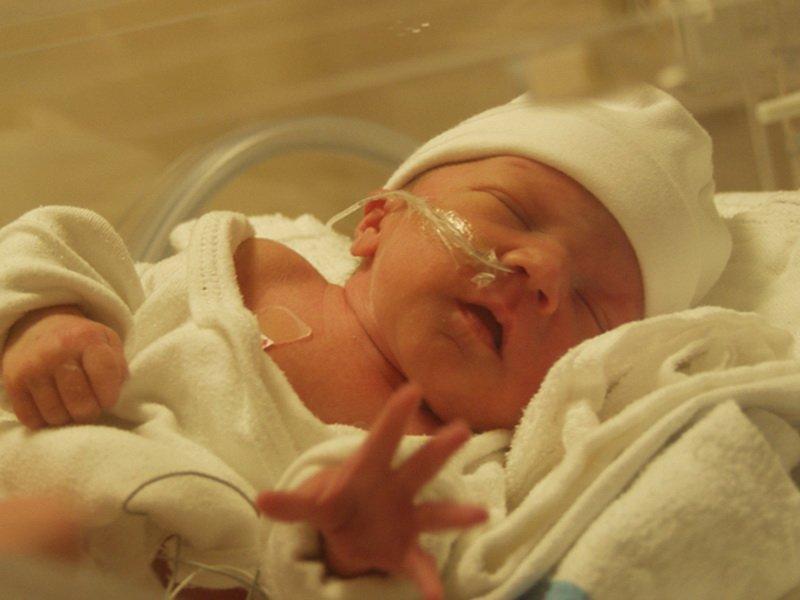 Новорожденный помещен в кювез и дышит через специальные трубки