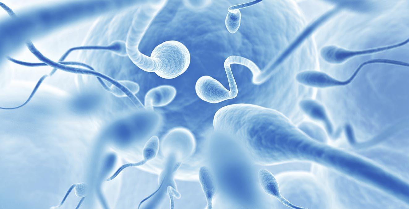 Многие формы азооспермии подвергаются успешному лечению