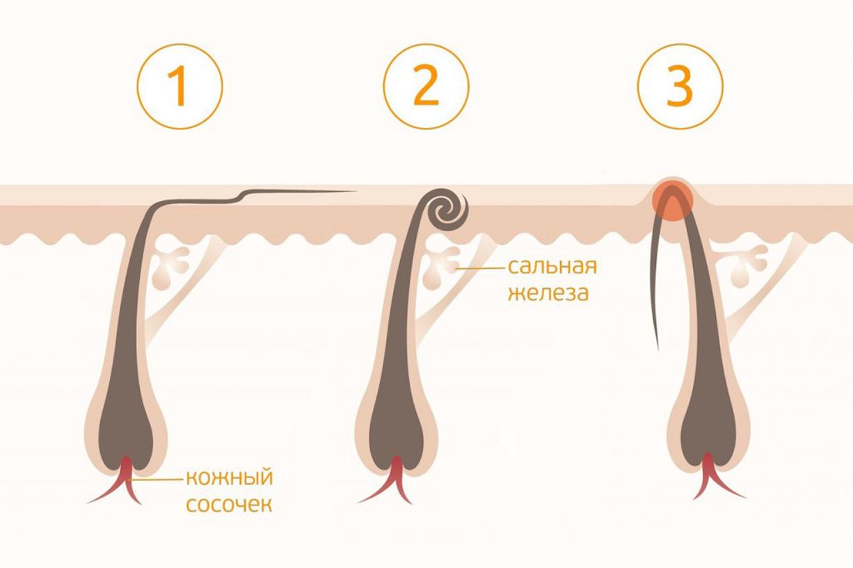 Стадии вросших волос