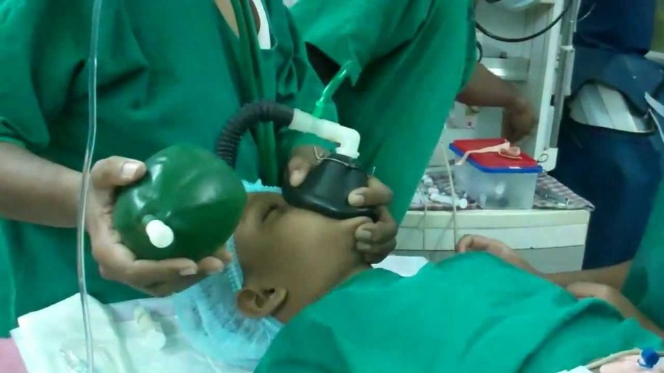 Операция под общим наркозом по удалению миндалин