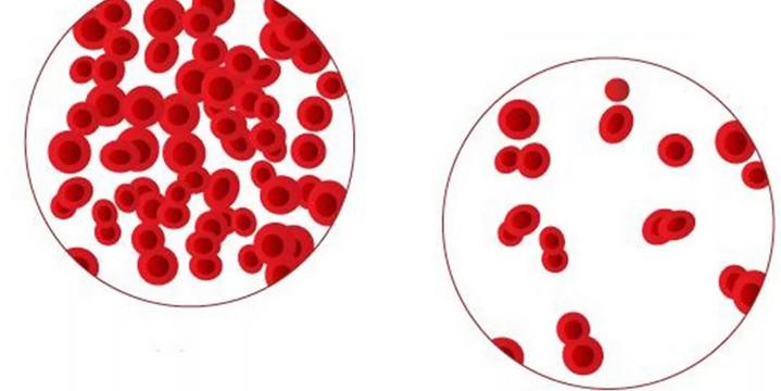 Анемия — причина повышения температуры до 37,5