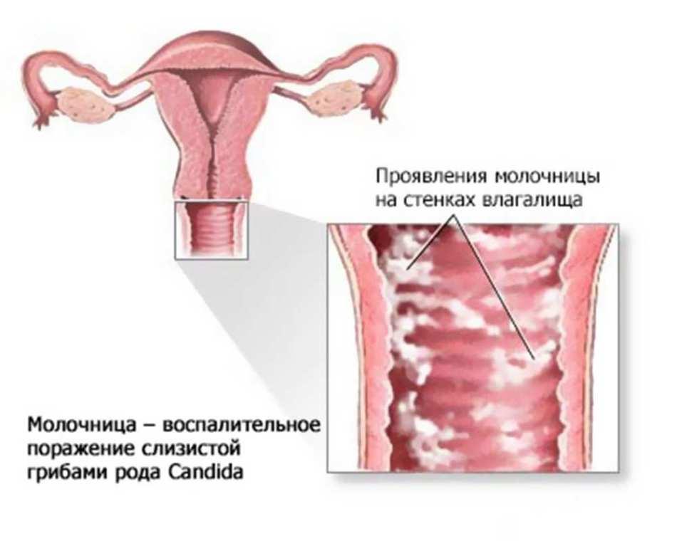 Схема заражения молочницей