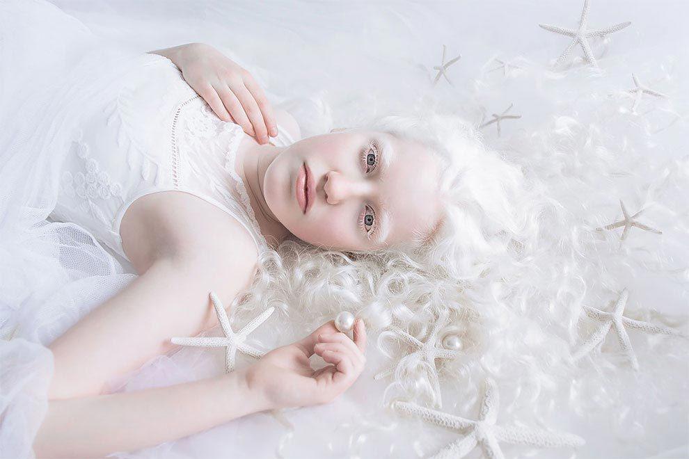 Альбиносы - характер