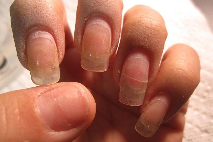 Чаще всего страдает именно ногтевая пластина и кожа вокруг нее