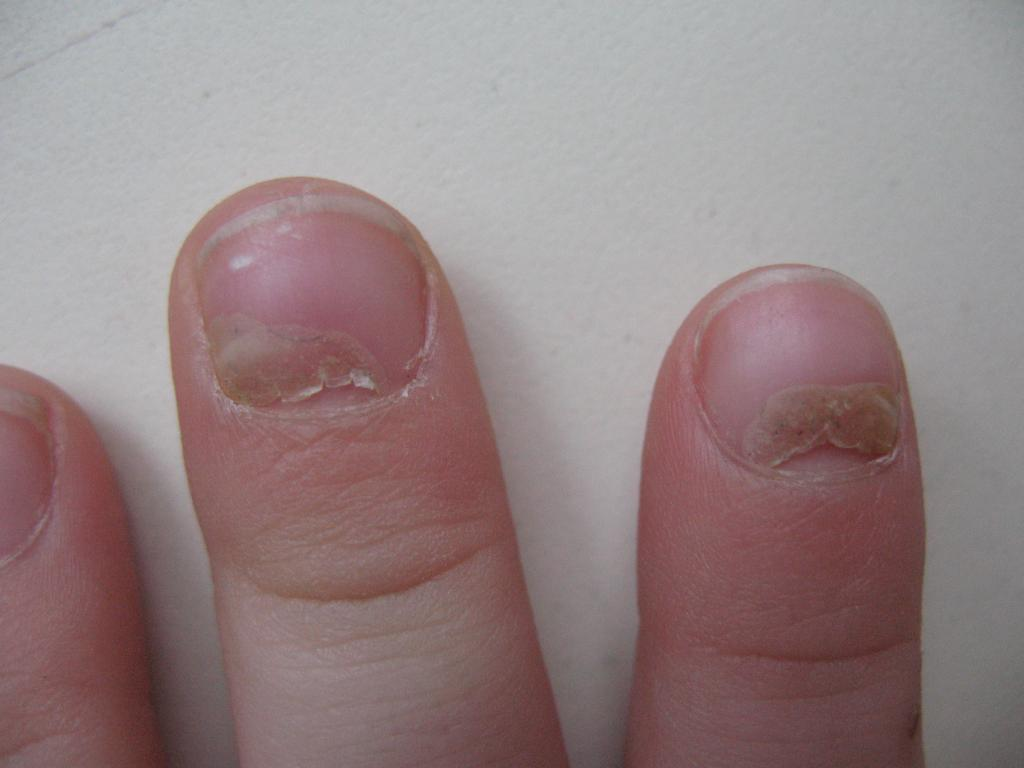 Чесотка у грудничков поражает ногтевые пластины