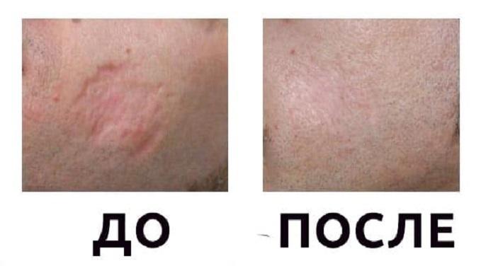 Лечение шрама от ожога: до и после