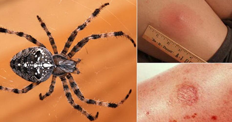 Укус ядовитого паука