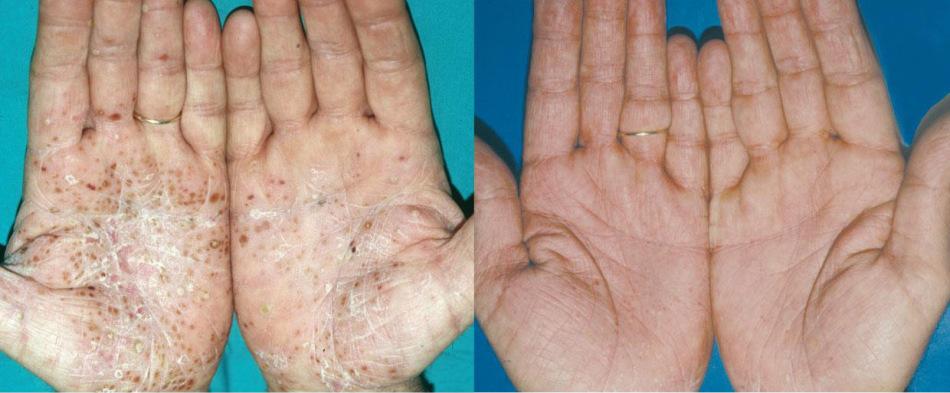 Лечение псориаза настойкой личинок восковой моли