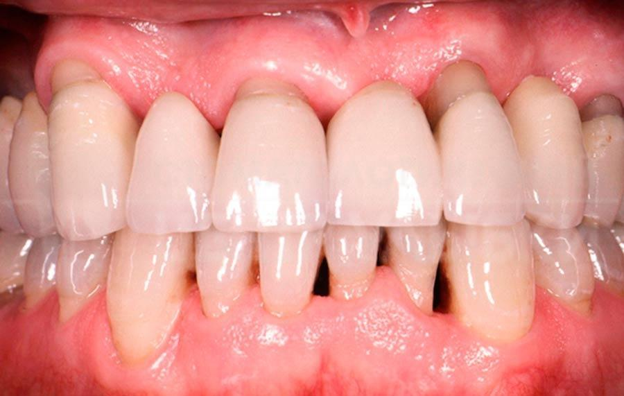 Шатаются зубы