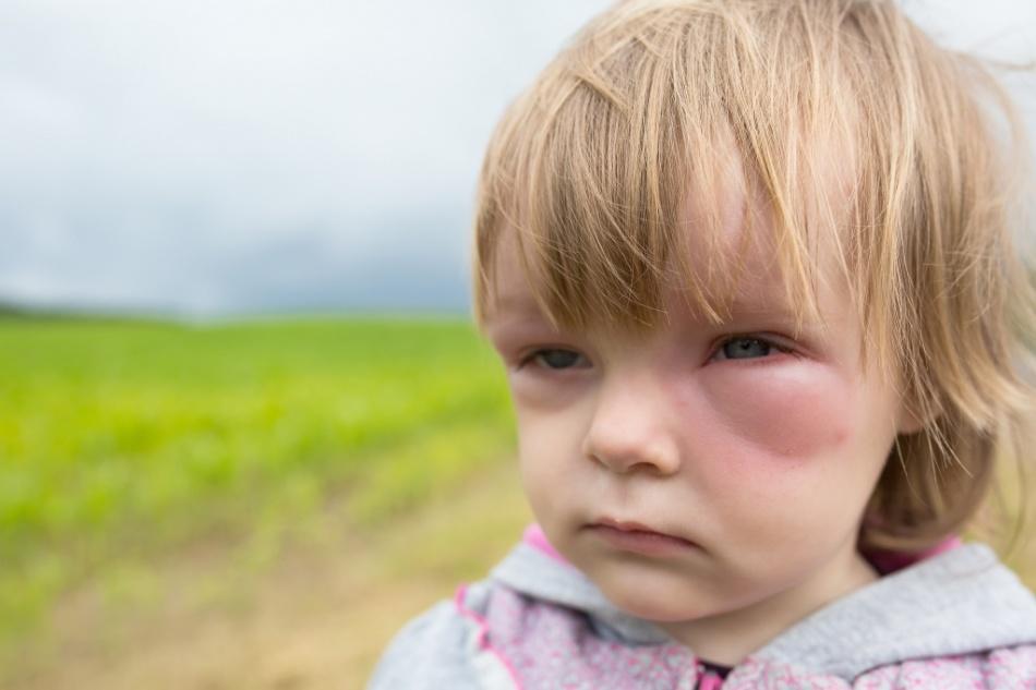Мошка укусила ребенка в веко
