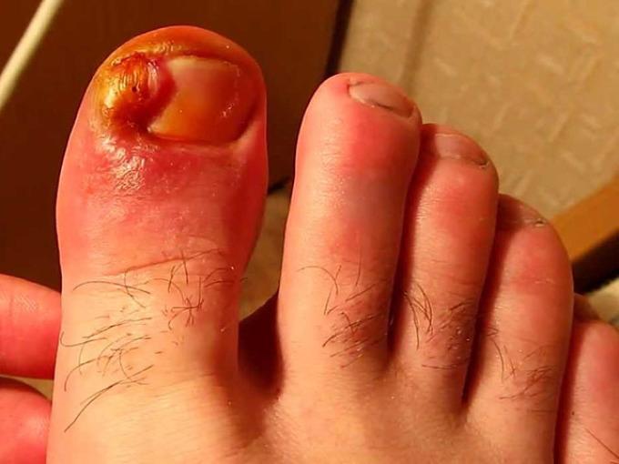 Нарыв около ногтя на пальце ноги.
