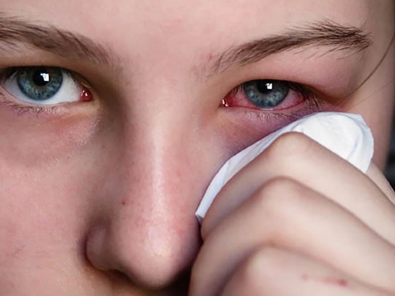 Причиной покраснения могут быть различные факторы, среди которых многие заболевания
