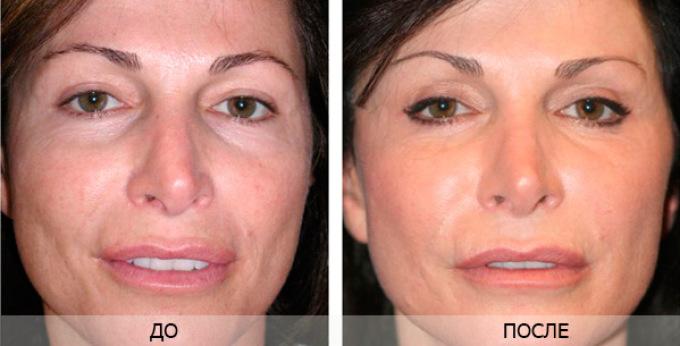 Пилинг способствует омоложению кожи лица