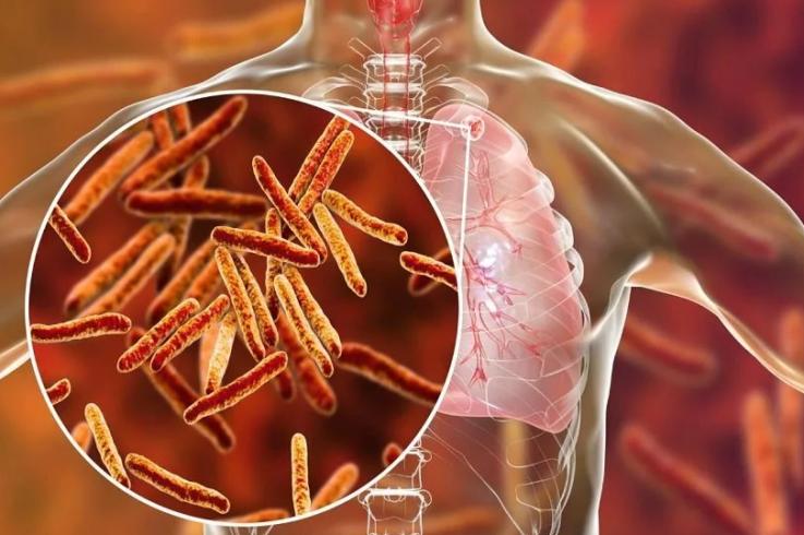 Температура 37,0-37,9 — причина: туберкулез
