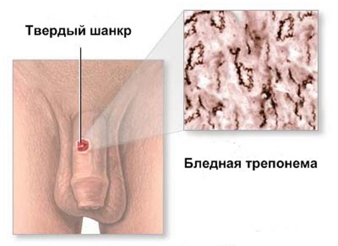 Как выглядит шанкр при сифилисе