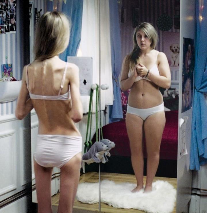Медицинские препараты не только лечат, но и формируют анорексию!