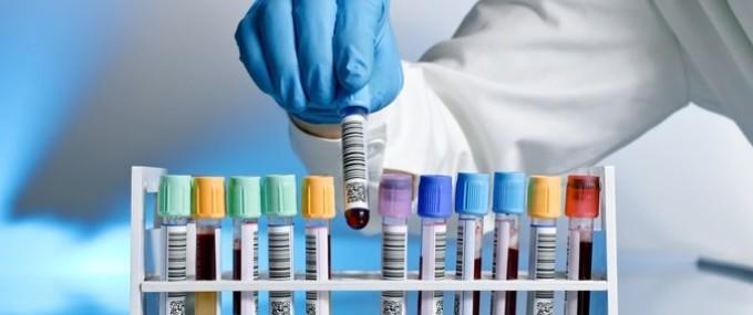Можно ли сдать анализ крови на магний?