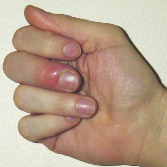 Развитию гнойного процесса способствует попавшая под кожу инфекция.