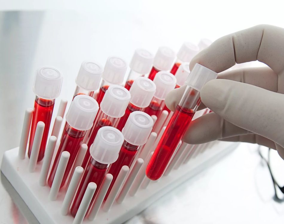 Определение кислотности желудка по анализу крови
