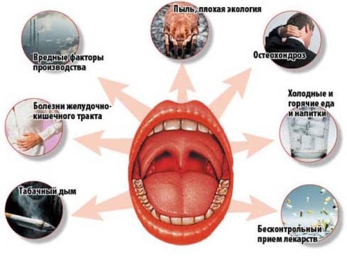 Симптомы и признаки тонзиллита