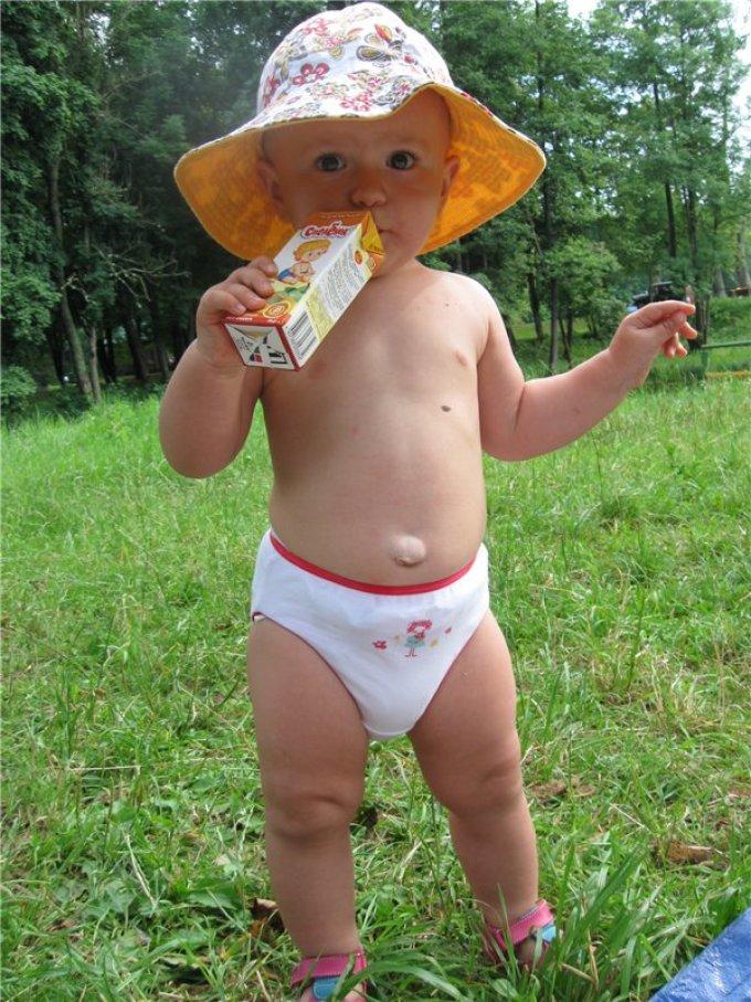Грыжа у ребенка 2 года